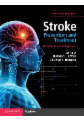 Stroke Prevention and Treatment: An Evidence-Based Approach